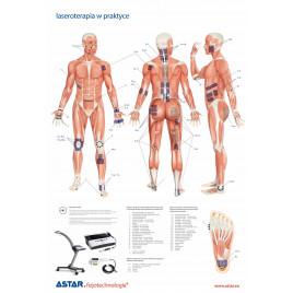 Plansza dydaktyczna laseroterapia w praktyce